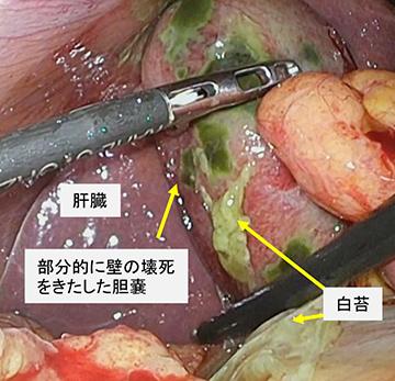 ポリープ なくなる 胆嚢