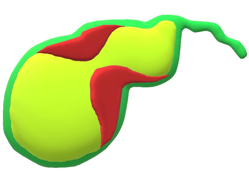 なくなる 胆嚢 ポリープ